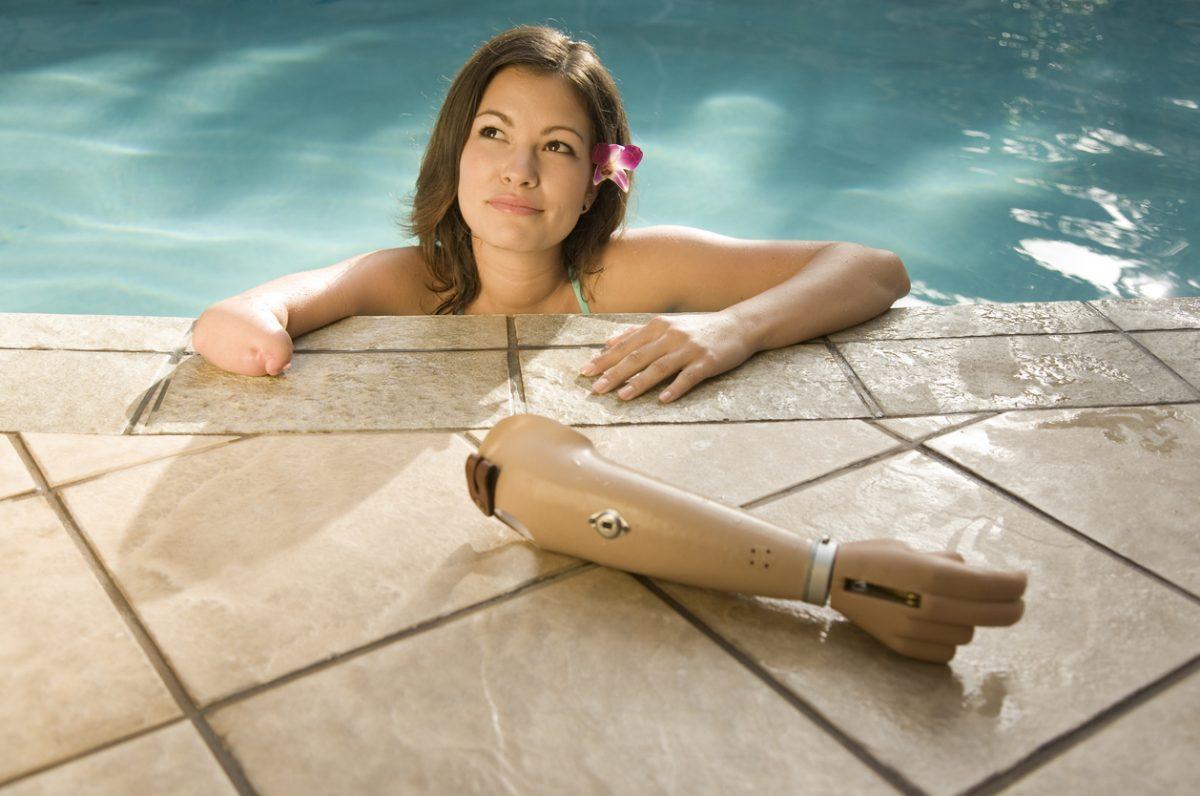 Des prothèses de main fabriquées à partir de gobelets recyclés !