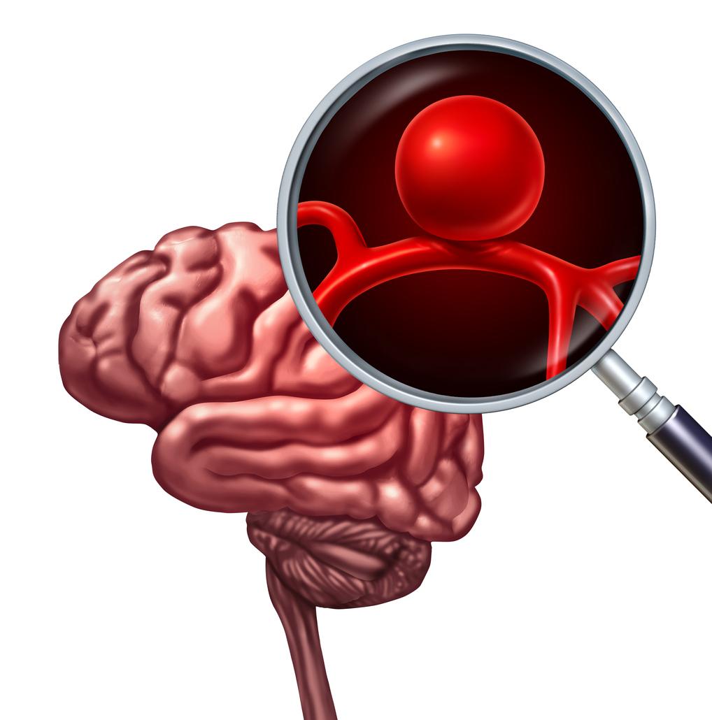 Un gène permettrait le dépistage préventif de la rupture d'anévrisme cérébral